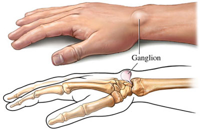 Ganglión