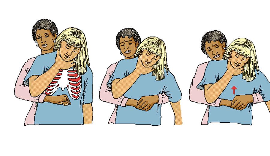 Adulto y asfixia y lazo