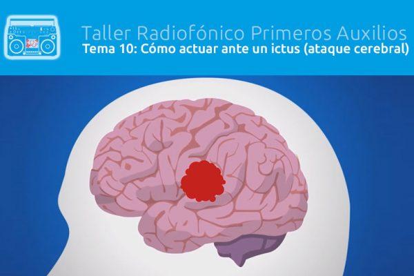 Tema 10: Cómo actuar ante un ictus (ataque cerebral)