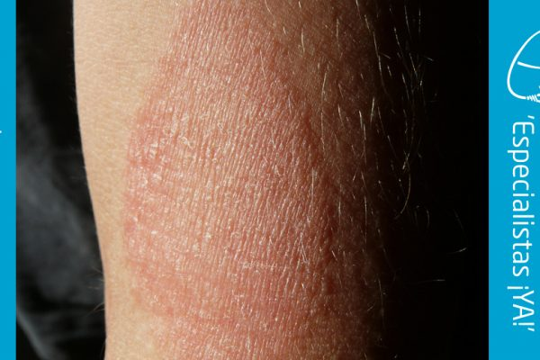 Dermatitis Atópica (Eccema Atópico)