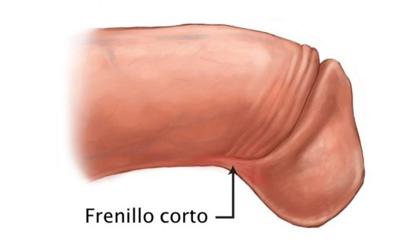 Frenillo corto