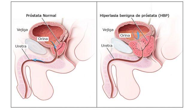 Hiperlasia benigna de próstata (HBP) o adenoma de próstata