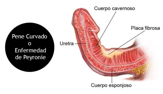 Pene curvado o enfermedad de Peyronie