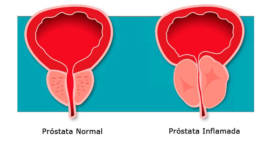 antibióticos directos para la prostatitis